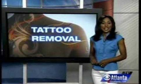 Tattoo Removal & Job Interviews